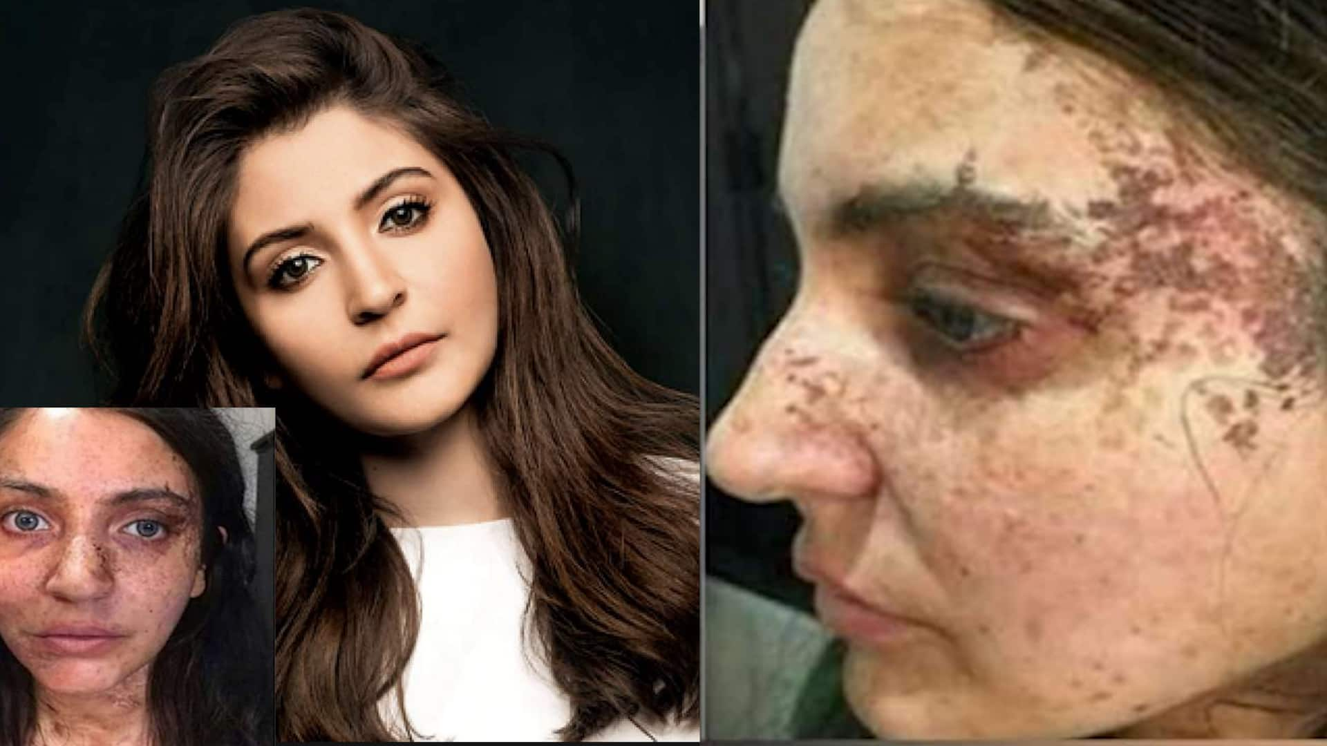 Anushka Sharmas Pari scary looks go viral 5 months after movie release
