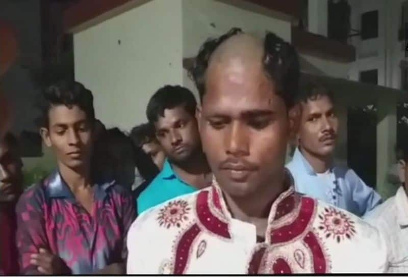 dowry Demand at the time of the marriage groom head shaved police lucknow