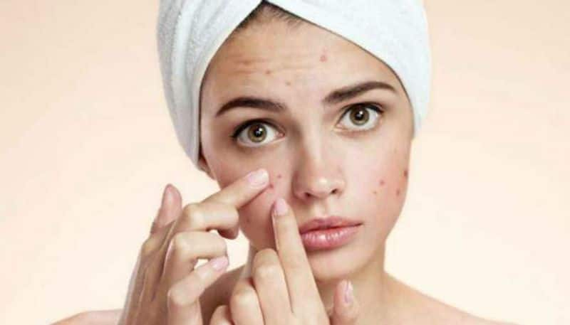 Do you know daily consumption of sweets and cakes can cause acne?
