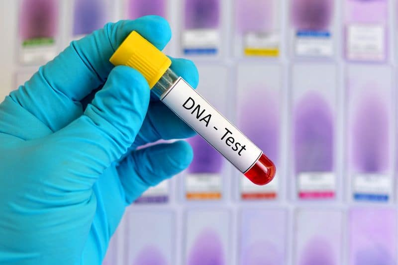 Covid-19 patient DNA used to identify at-risk groups