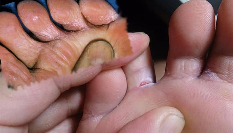 Tips to protect fungal infected feet