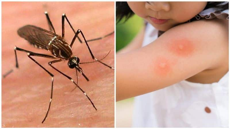 signs and symptoms of  dengue