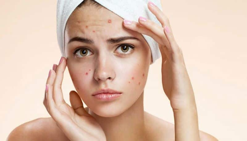 how to control pimple mark on the face