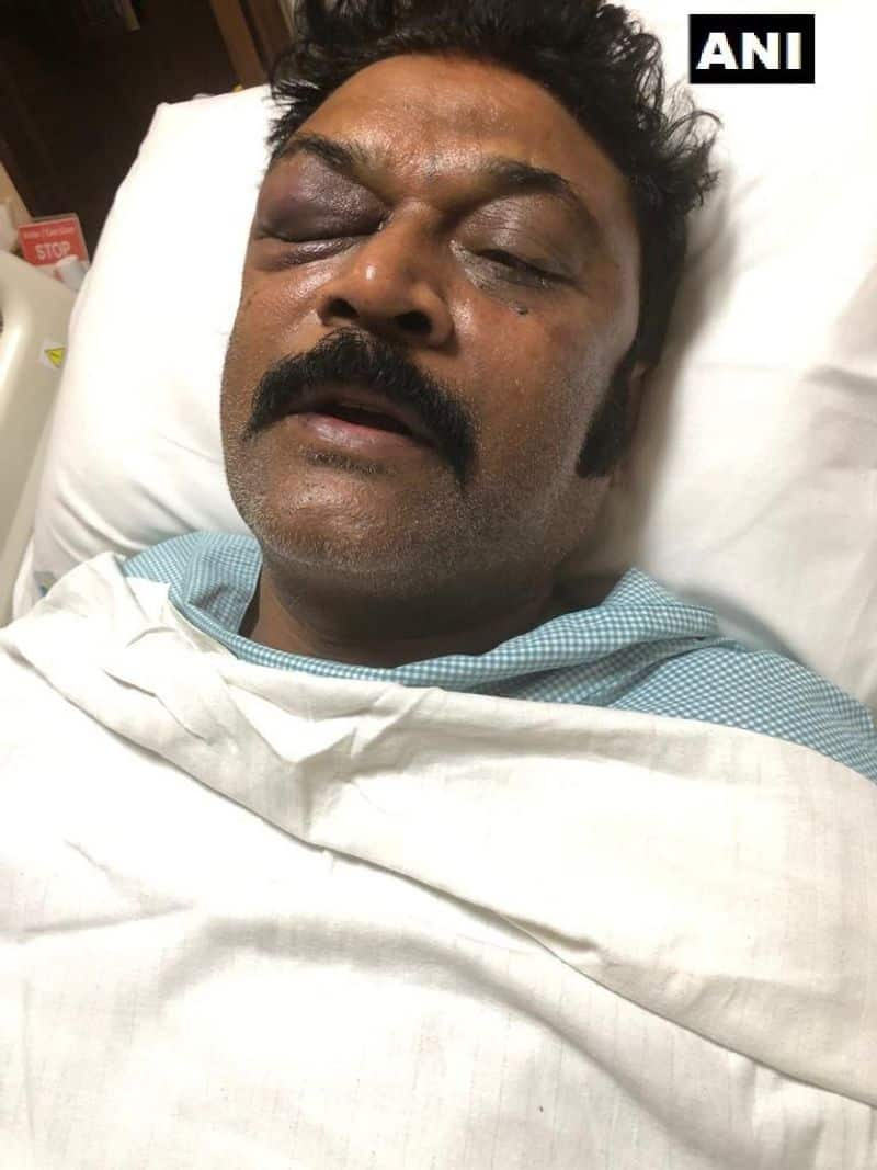Resort Fight Congress MP DK Suresh visits Hospital and Meet Anand Singh