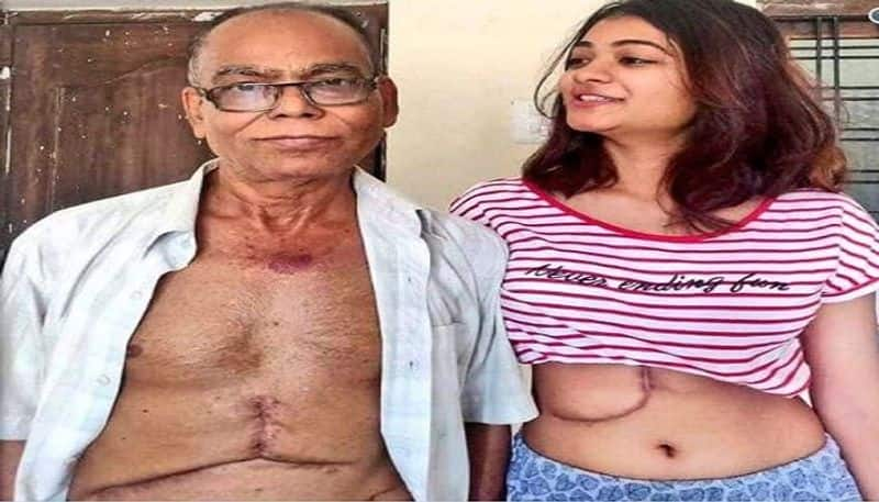 19 Year Daughter Donates Her Liver To Save Her Father