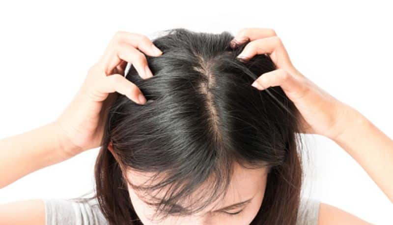 Natural Ways to Get Rid of Scalp Odor