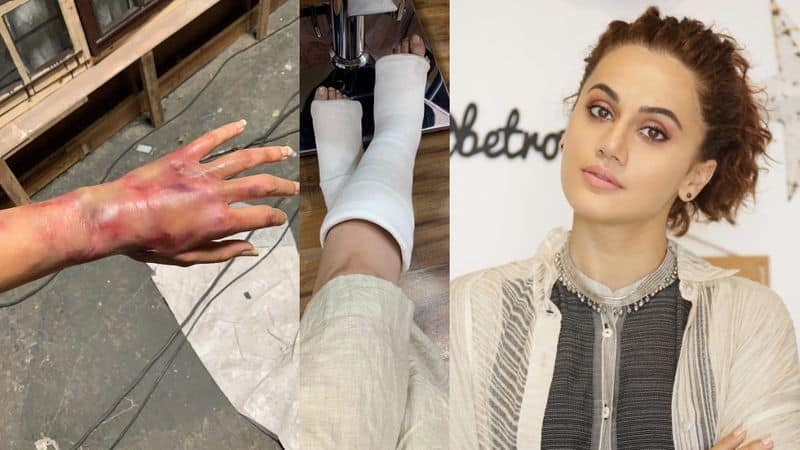 taapsee pannu shares her injured photos