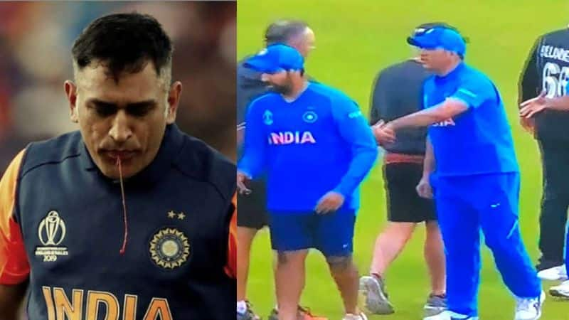 world cup 2019: ms dhoni's right thumb injury