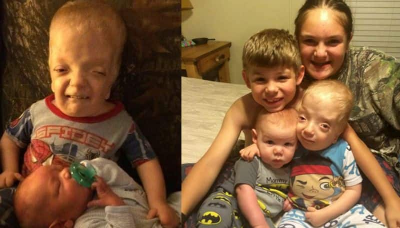 baby born with defects blind, deaf, hole in his heart rare syndrome