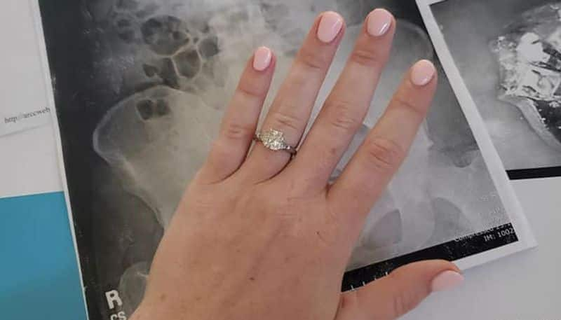 girl swallowed her engagement ring while dreaming at night