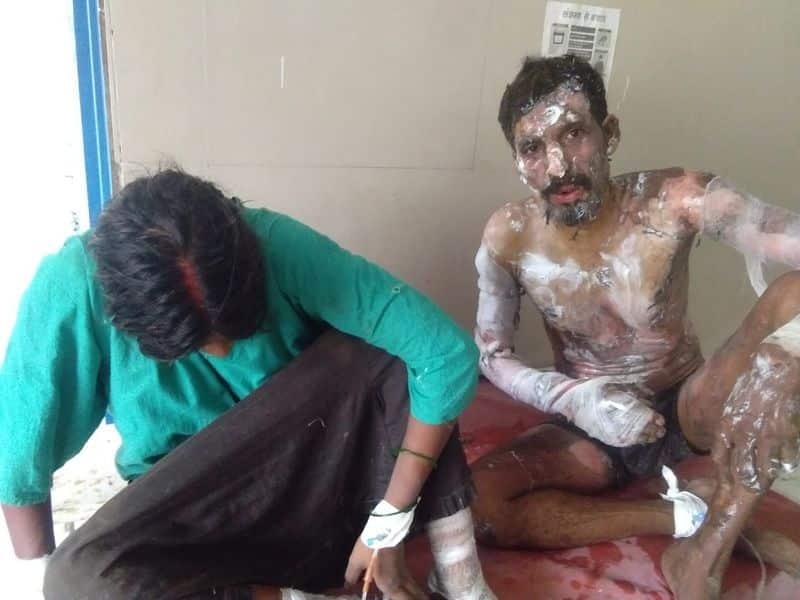 Rape accused tried to burn himself, policemen saved him