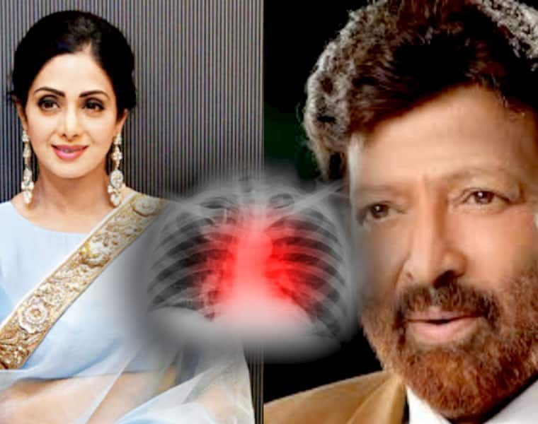 RIP Sridevi What causes sudden cardiac arrest and what you can do to prevent it