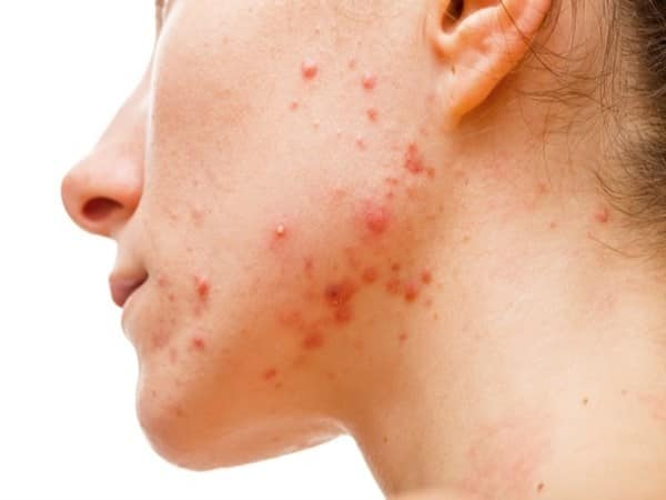 try to control pimples