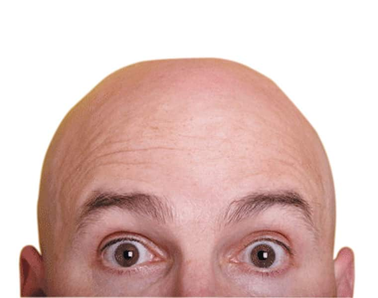 Study Suggests Bald Men Could Be at Higher Risk for Severe COVID-19 Symptoms