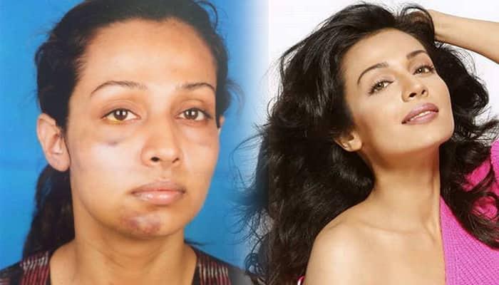 Stree actress Flora Saini shares her Me Too story on Facebook
