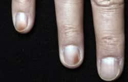 nail colour change