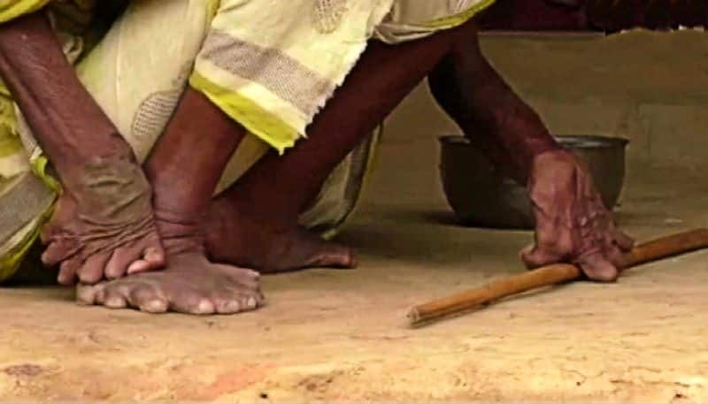 Odisha woman born with 20 toes and 12 fingers, called a witch by the neighbours