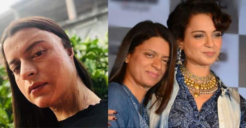 Chhapaak in Kangana Ranaut's sister's life; Rangoli shares acid attacker's name and more
