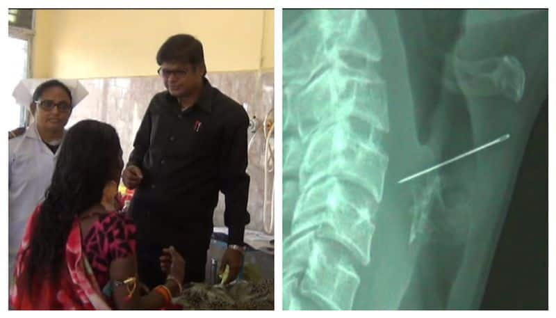 Doctors of Bankura medical college brings out needle from food track of a lady