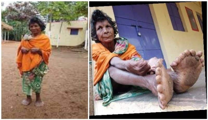 kumari nayak got place in Guinness World Records book for her extra fingers