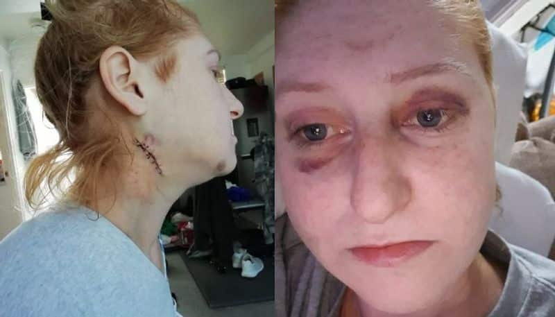 woman shares her terrific experience of domestic violence