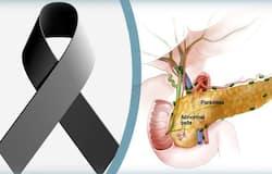 <p>Neuroendocrine Tumor</p>