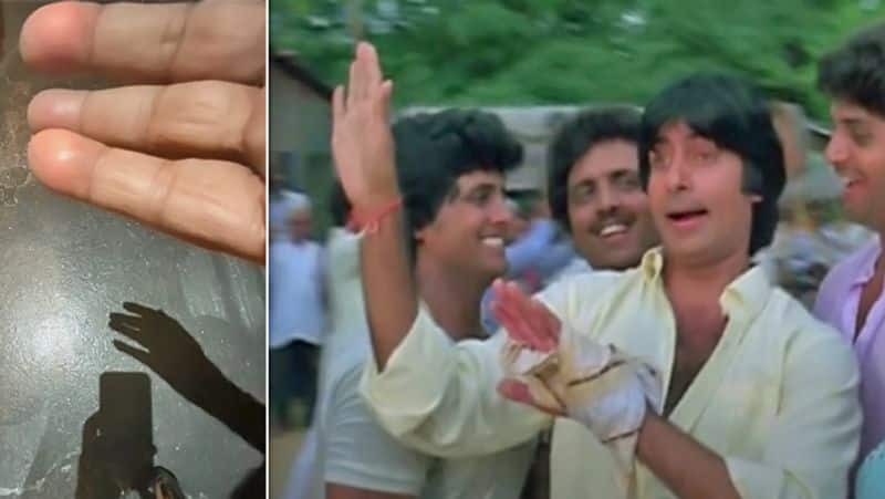 amitabh bachchan shared a picture of his burned finger