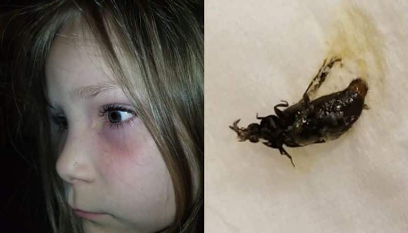 Live beetles stuck inside the six year old eyes goes viral