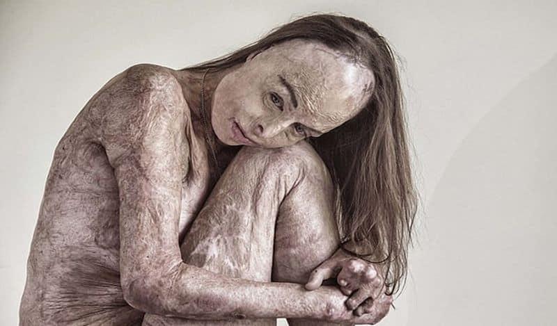 53 ವರ್ಷದ ಕೈರೋಲ್ ಮೇಯರ್ ಆಸ್ಟ್ರೇಲಿಯಾ ನಿವಾಸಿ. ಇವರು ನಗ್ನ ಫೋಟೋಗಳನ್ನು ಲಂಡನ್ನ ಫೋಟೋಗ್ರಾಫರ್ ಬ್ರಾಯನ್ ಎಂಬವರು ಕ್ಲಿಕ್ಕಿಸಿದ್ದಾರೆ. ಈ ಫೋಟೋಗಳನ್ನು Portrait of Humanity 2020 ಅವಾರ್ಡ್ಗೆ ಆಯ್ಕೆ ಮಾಡಲಾಗಿದೆ.