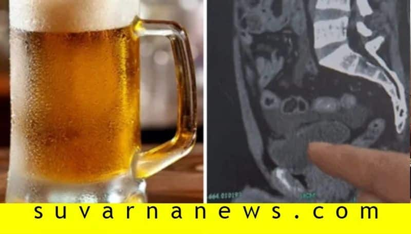 Man holds urine for 18 hours after drinking 10 beers his bladder ruptures