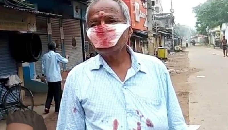 Elderly man attacked for protesting against not wearing mask in Suri