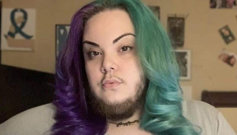 girl with excess facial hair due to pcos