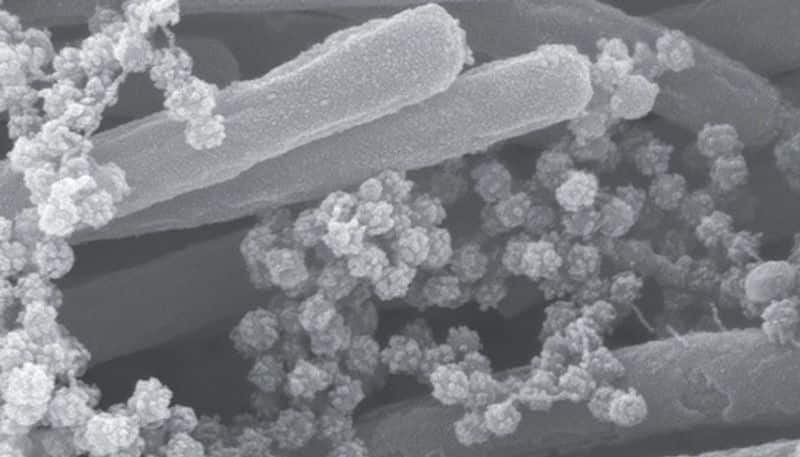 scientists of north Carolina captured image of coronavirus infected sells bsm