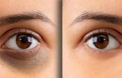 <p>Not only do these under-eye circles make you look much older than what you actually are, but they also have you looking ill or unhealthy. Before we even begin this natural journey, let me tell you that dark circles take time to fix and require great discipline. A regular skin and health care program should be followed.</p>