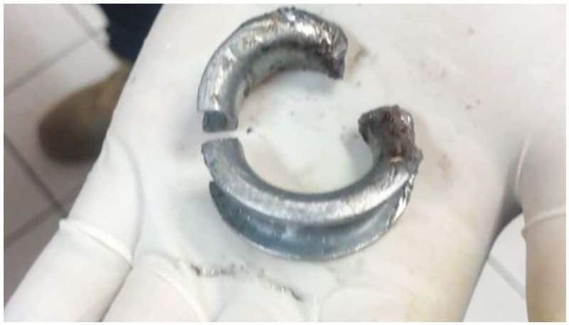 Doctors call fire dept to hospital to cut a stainless steel ring off a man's penis in United Kingdom ALB