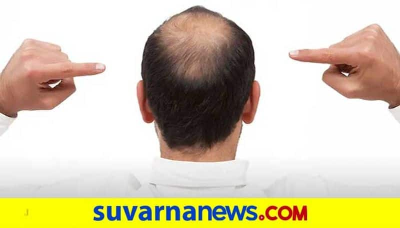 Woman seeks divorce from husband for hiding baldness before marriage wearing wig UP mah