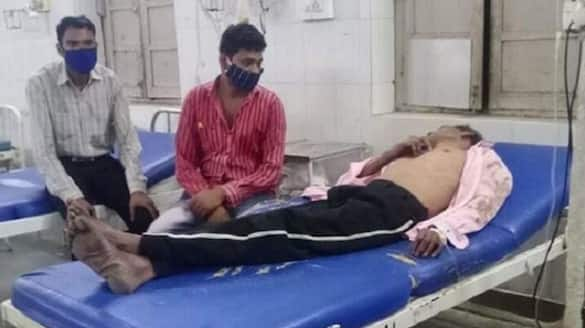 Chhattisgarh 8 Dead, 5 Hospitalised After Consuming Homeopathic Medicine, Drosera 30 in Bilaspur, Doctor Absconding lns