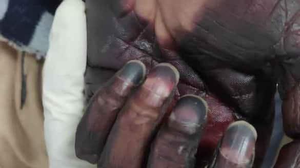 Black Fungus Cases Decrease in Dharwad District grg