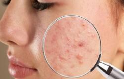 <p>acne</p>