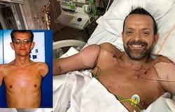 <p>Arm Transplant, Double Arm Transplant, Iceland Double Arm Transplant, Transplant</p>