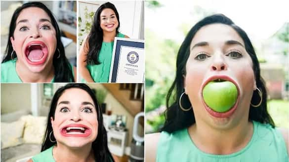 woman who can open her mouth 6.52 cm gets Guinness World Record
