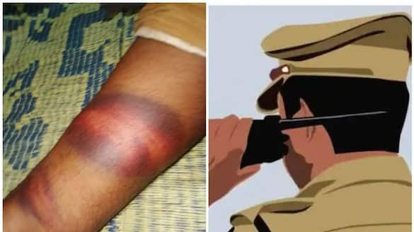 man allegations against poovar police on cruelty