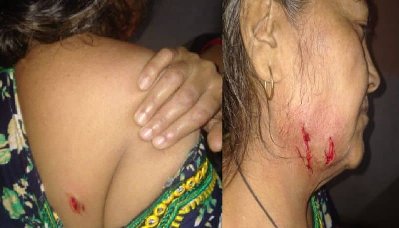 Leopard attacks woman at Aarey Milk Colony, sixth such incident this month bpsb