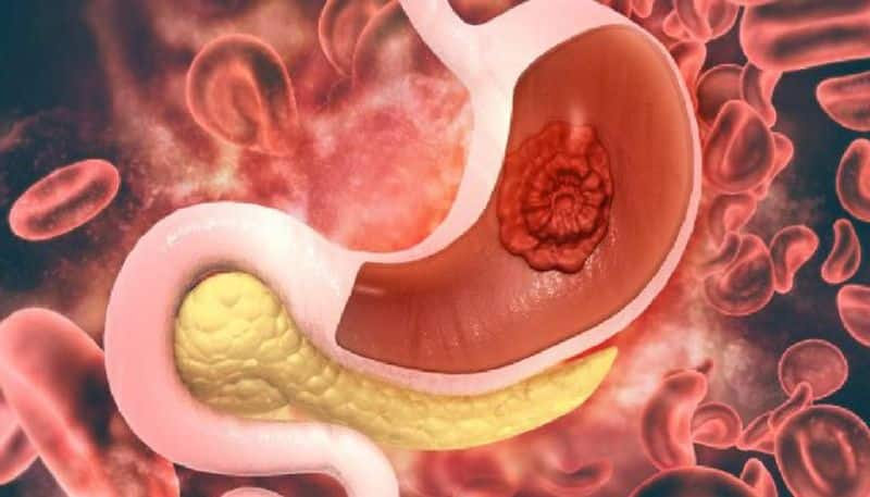 know the symptoms of stomach cancer