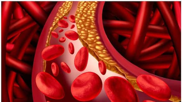 Natural Ways to Lower Your Cholesterol Levels